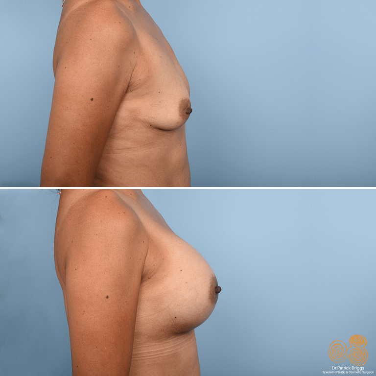 Breast Augmentation Gallery​