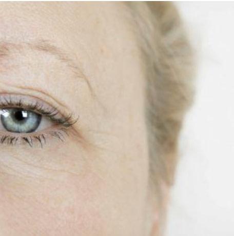 Facial Eyelid Surgery Perth