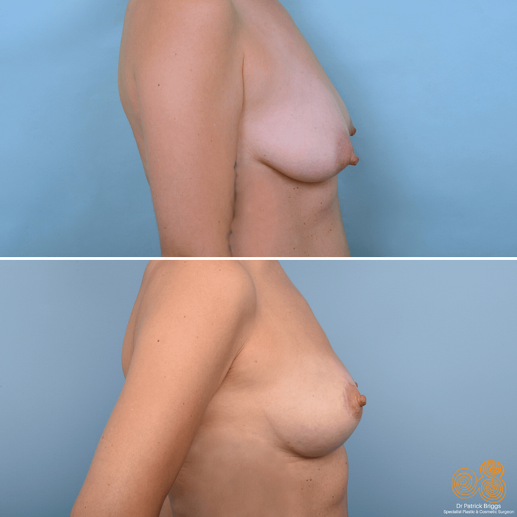 Breast Lift Gallery​