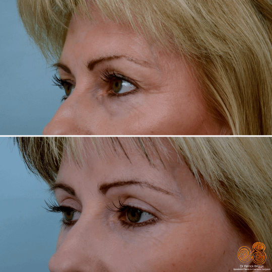 Blepharoplasty Surgery in Perth