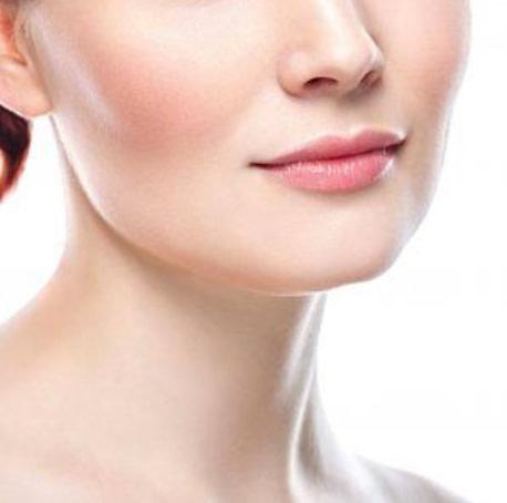 Facial Cheek Augmentation Perth