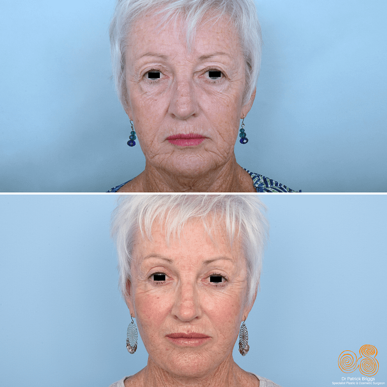 Face Lift Gallery