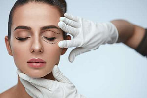 Blepharoplasty Recovery