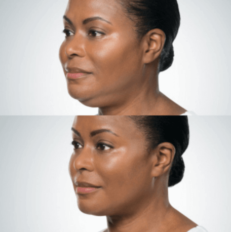 Non-Surgical Chin Fat Dissolver