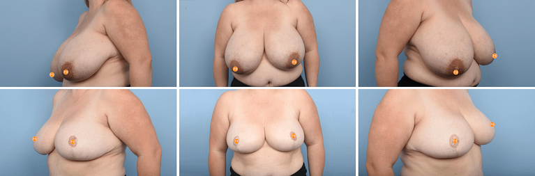reduction Surgery