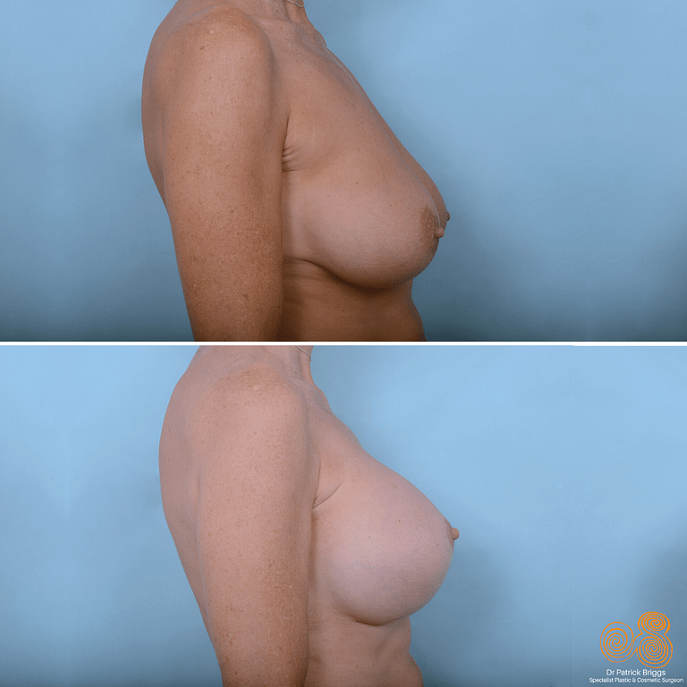 Breast Augmentation Mastopexy Gallery
