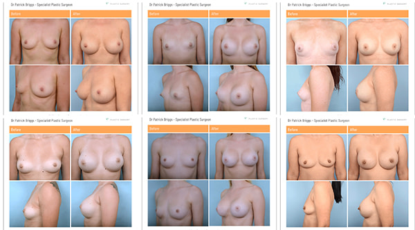 Dr-Patrick-Briggs-before-and-after-breast-augmentation