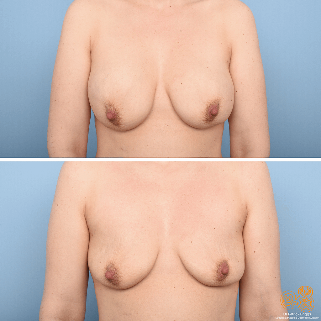 Removal of Breast Implants