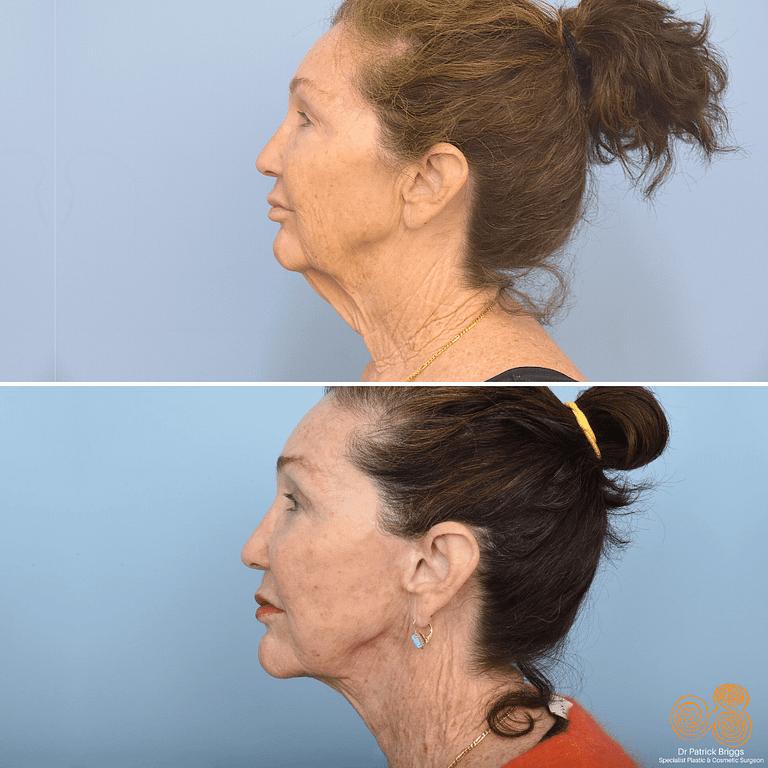 Face Lift, Neck Lift & Upper + Lower Blepharoplasty