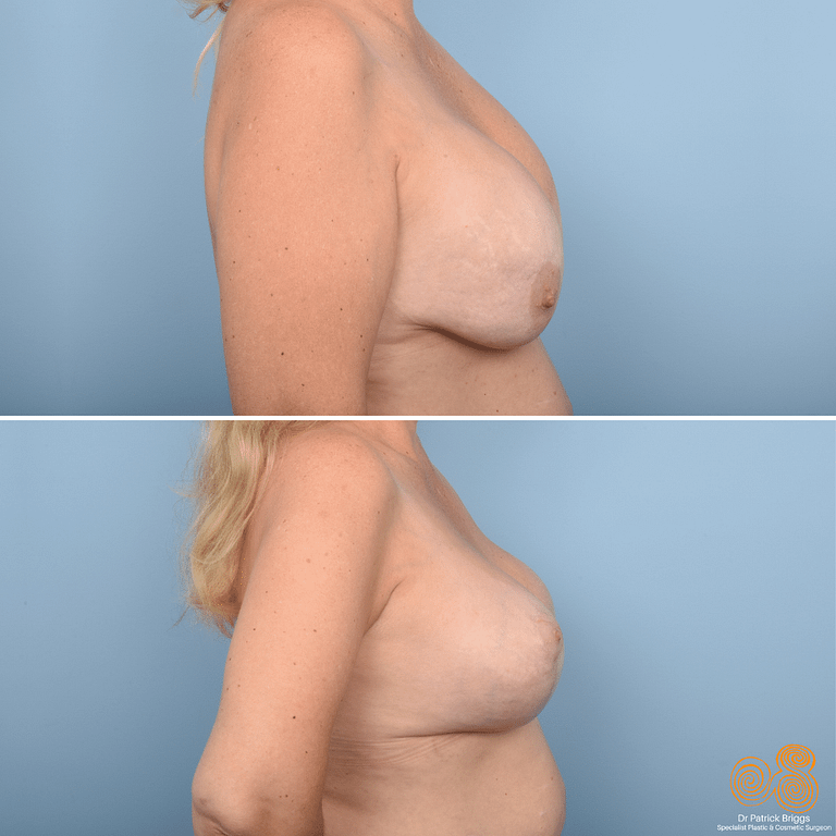Removal & Replacement of Breast Implants & Breast Lift