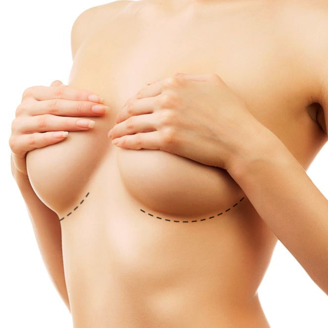Silicone Gel breast Implant