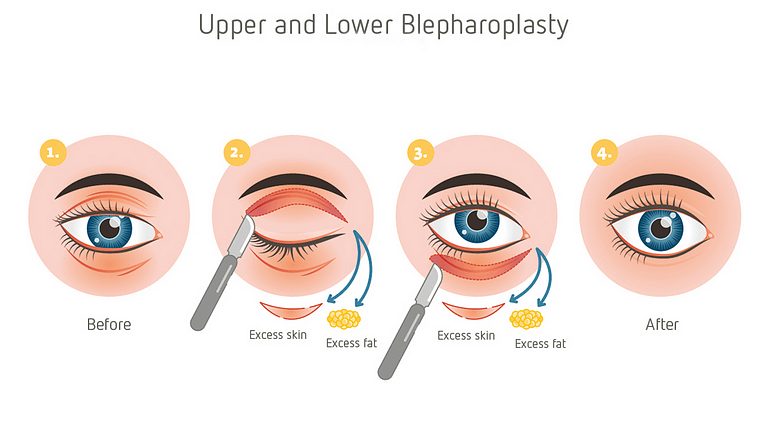 Blepharoplasty Procedure
